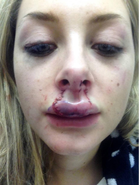 Cô gái 18 tuổi bị bạn trai cắn nát môi khi đang hôn 7