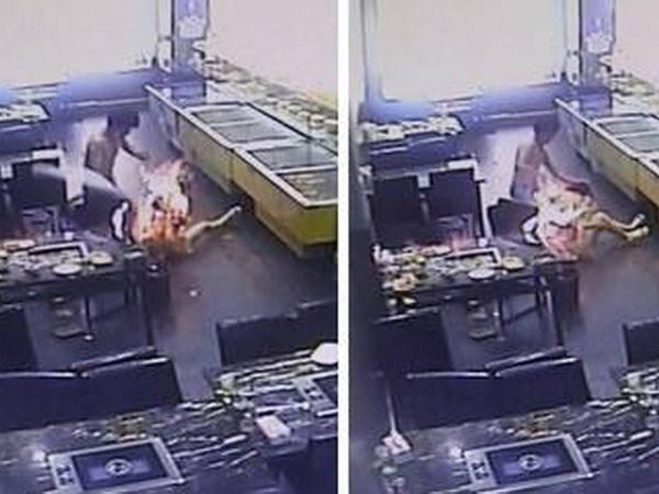 Đi ăn đồ nướng, cô gái bị lửa bén cháy như đuốc sống 4