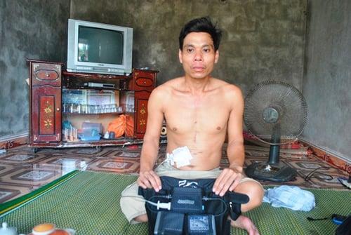 Hình ảnh Người duy nhất ở Việt Nam sống nhờ sạc điện vào tim số 1