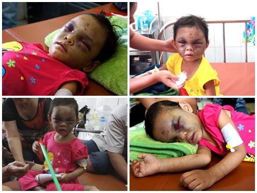 Tạm giữ hình sự cặp vợ chồng đánh bé gái 4 tuổi chấn thương sọ não 4