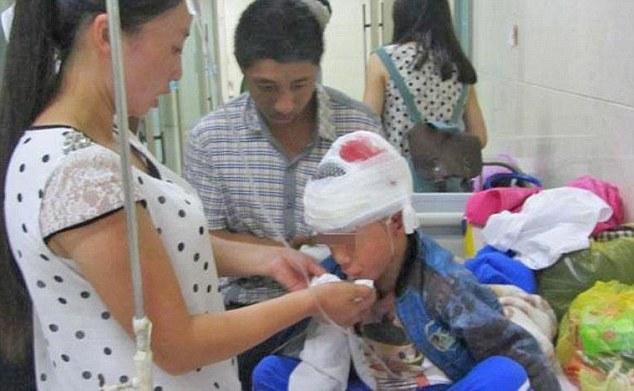Trung Quốc: Giáo viên nghệ thuật dùng sách đánh vỡ sọ học sinh 3