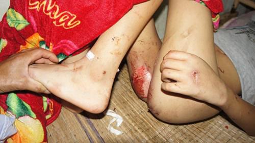 Giải cứu bé trai tàn tật bị bắt cóc, đánh đập dã man, đốt cháy bộ phận sinh dục 8