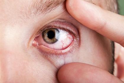 Cảnh báo bệnh nguy hiểm chết người qua đôi mắt 5