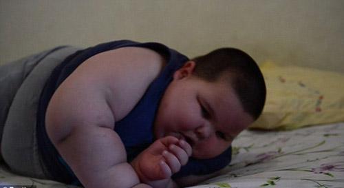 Mắc bệnh không thể dừng ăn bé 3 tuổi nặng 70kg 6