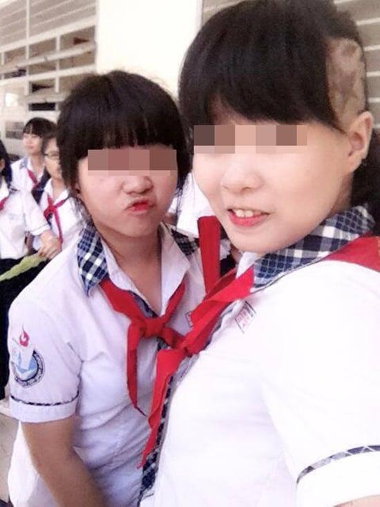 Nữ sinh 10x cạo đầu đến trường khiến nhiều người sửng sốt 7