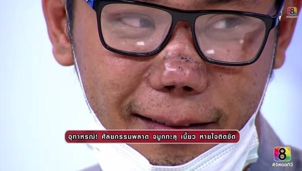 Cặp đôi Thái Lan thành quái nhân vì phẫu thuật thẩm mỹ hỏng 6