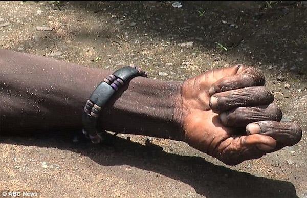 Hoảng hồn thi thể nạn nhân Ebola đem đi chôn bỗng nhiên sống lại 5