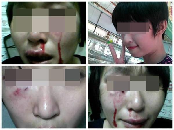 Hình ảnh Tâm sự đầy nước mắt của cô gái trẻ, xinh đẹp bị chồng đánh đập dã man số 1