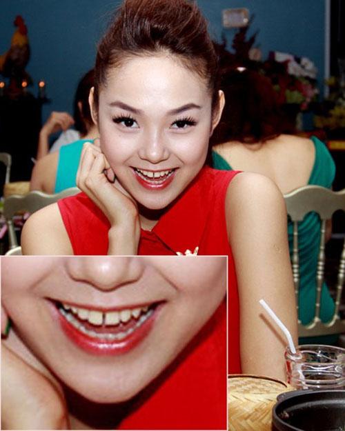 Soi những điểm không hoàn hảo của các mỹ nhân Việt 15