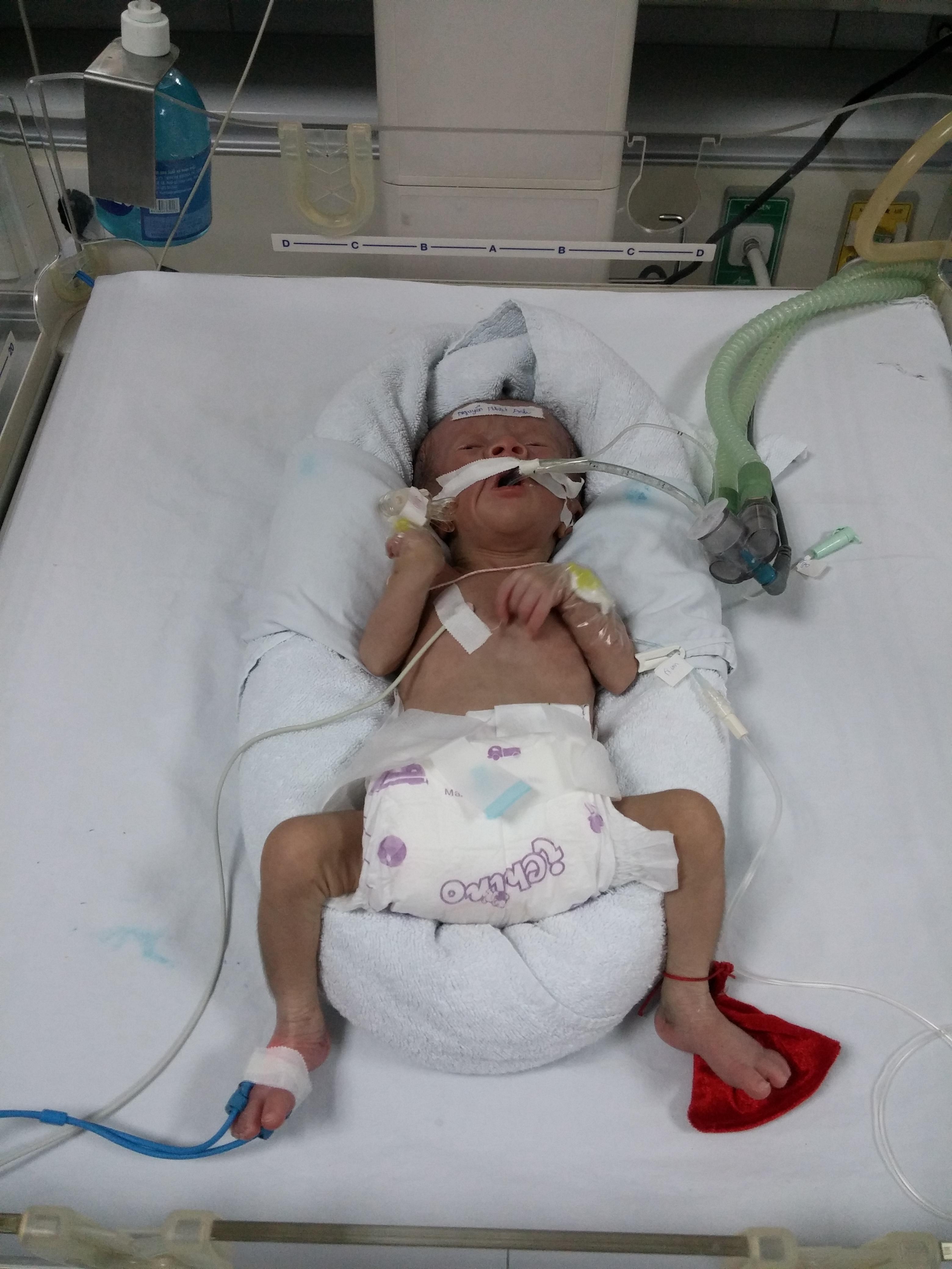 Xót thương những bé bệnh tim đến viện rồi về chờ chết 9