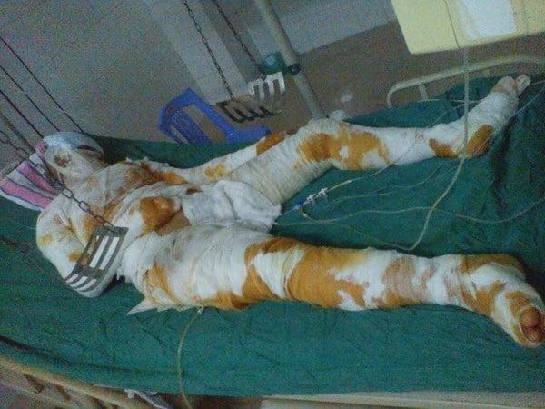 Nướng cá cho chồng, vợ bị bỏng cồn nặng 5