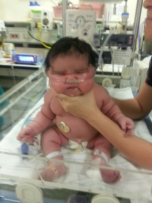 Bé gái chào đời đã nặng gần 7kg 4