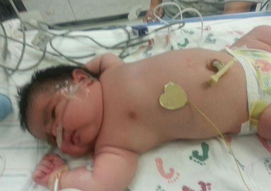 Bé gái chào đời đã nặng gần 7kg 5