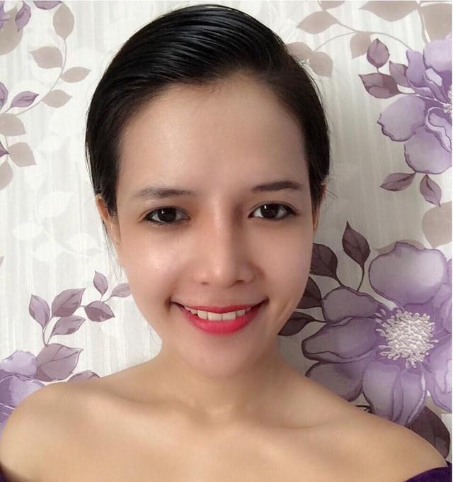 Hình ảnh Cận cảnh nhan sắc hot girl của cô gái sửa toàn bộ khuôn mặt số 3