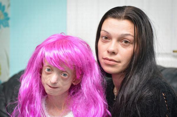 Hình ảnh xót lòng về cô bé 11 tuổi sống trong hình hài bà lão 80 6