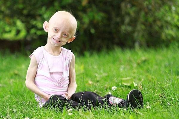 Hình ảnh xót lòng về cô bé 11 tuổi sống trong hình hài bà lão 80 4