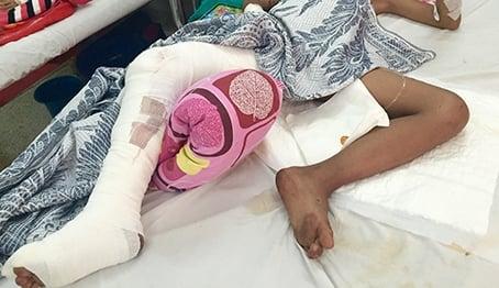 Cho khỉ ăn, bé trai 8 tuổi bị cắn đứt dây thần kinh 4