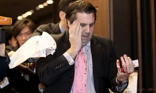 Đại sứ Mỹ tại Hàn Quốc bị tấn công bằng dao 5