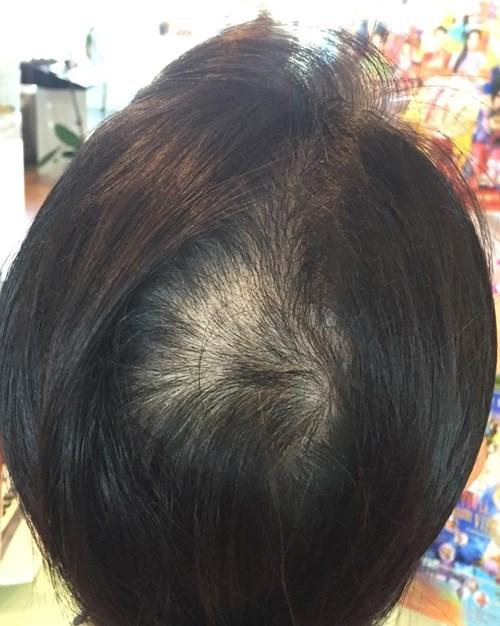 Nguyễn Cao Kỳ Duyên gặp 'tai nạn', tóc bị cháy rụi 5