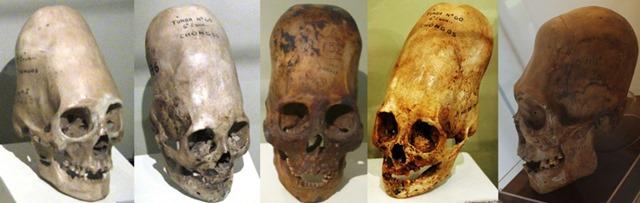 Kết quả phân tích ADN hộp sọ Paracas: Không phải của con người 6