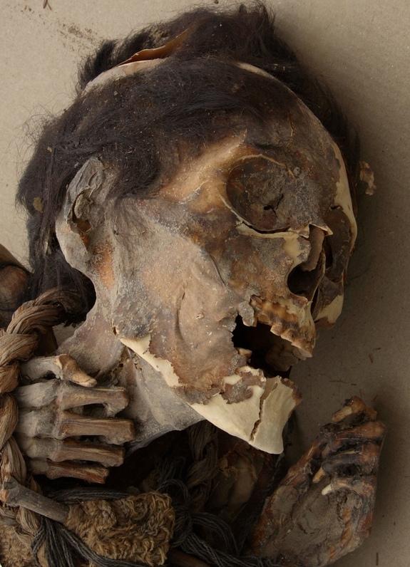 Xác ướp cổ nhất thế giới đột ngột chuyển màu đen 8