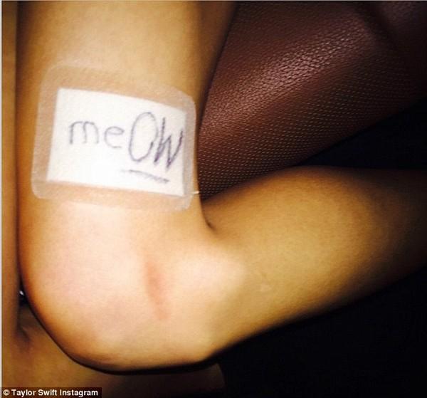 Taylor Swift khoe đôi chân 850 tỷ bị băng bó vì mèo cưng 10