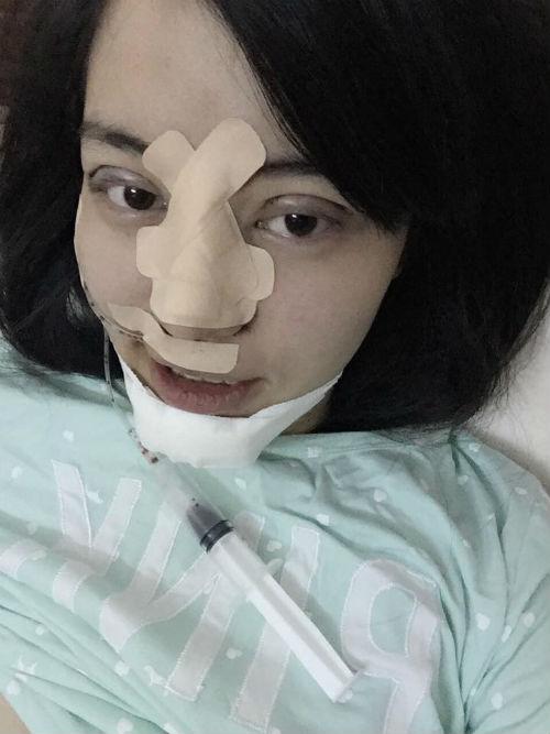 Bà mẹ 9X phẫu thuật thẩm mỹ toàn mặt vì sợ chồng