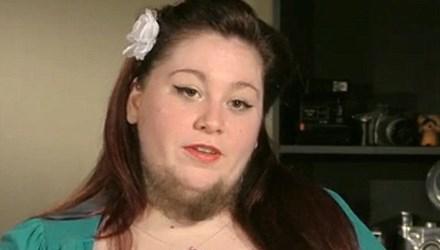 Kỳ lạ người phụ nữ mọc râu quai nón như đàn ông 3