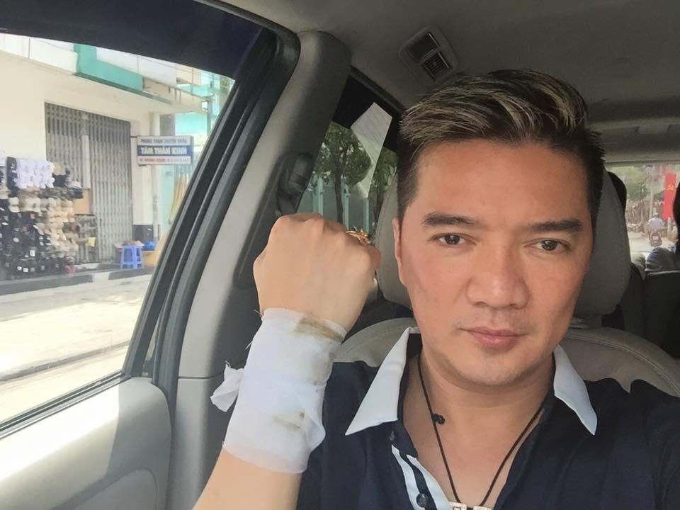 Đàm Vĩnh Hưng bị thương trước thềm liveshow khiến fan lo lắng 5