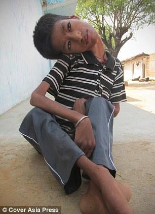 Nước mắt của gia đình bé trai mắc bệnh lạ - cổ bị gập gục 180 độ 6