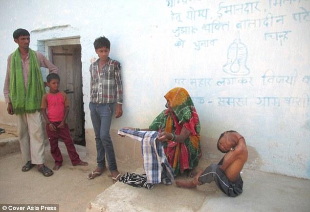 Nước mắt của gia đình bé trai mắc bệnh lạ - cổ bị gập gục 180 độ 7