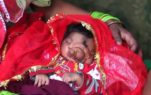 Hình ảnh Đau lòng phận đời những em bé được gọi là thần thánh số 3