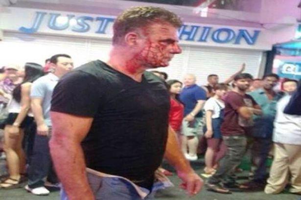 Ladyboy Thái Lan đánh du khách chảy máu vì