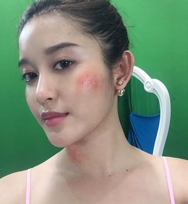 Fan lo lắng trước khuôn mặt bầm tím lạ thường của Á hậu Huyền My 1