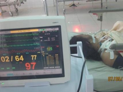 Vụ xe khách đâm chết người ở Trà Vinh: Nạn nhân phải cắt bỏ bàn chân 1