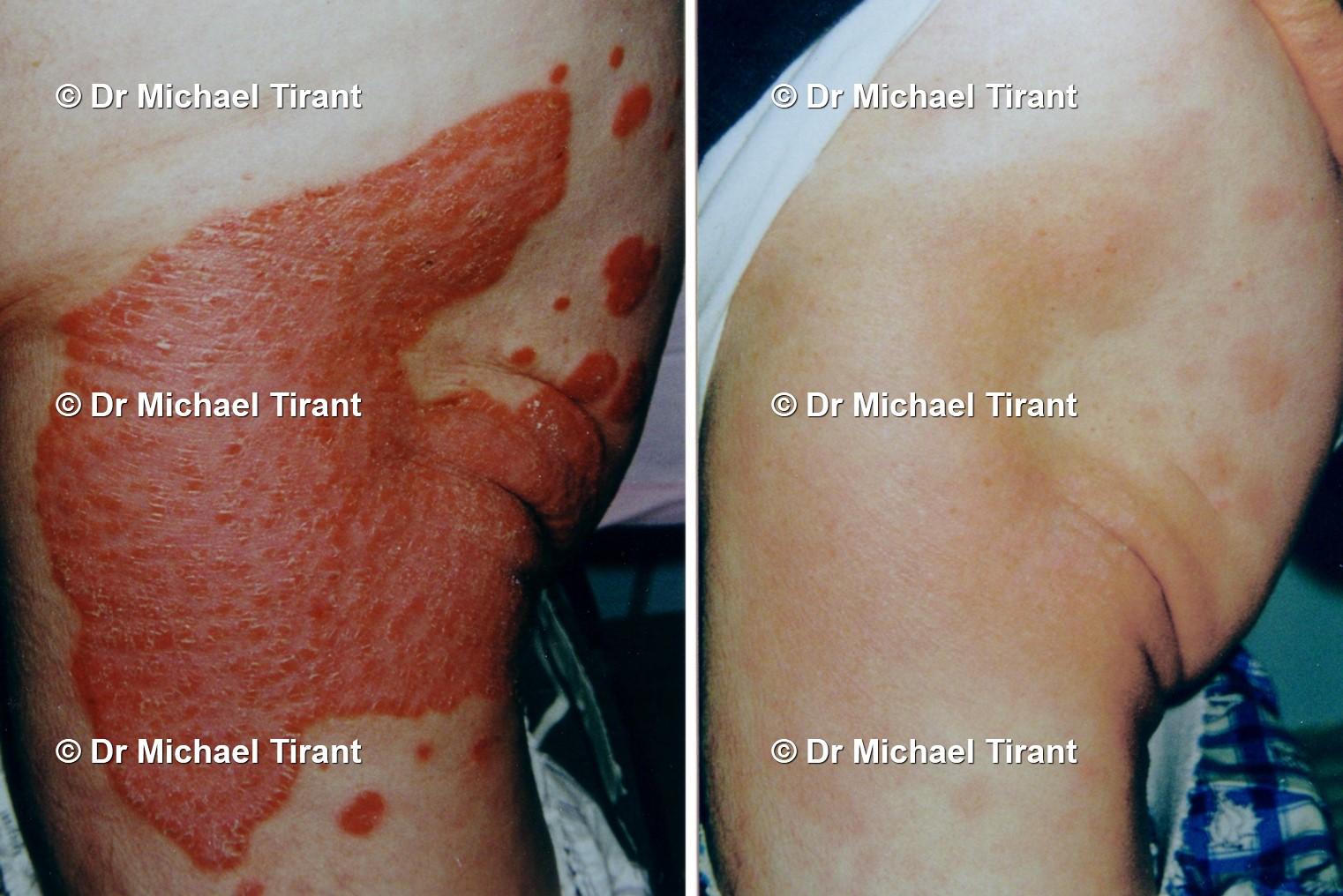 Nhà khoa học Úc chữa lành bệnh vẩy nến bằng thảo dược. Các Bác sĩ ngạc nhiên! 3