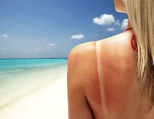 Chăm sóc da cháy nắng với 17 nguyên liệu tự nhiên một cách hiệu quả 1