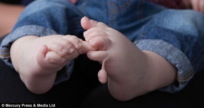 Kỳ lạ cậu bé có 12 ngón tay, 12 ngón chân 2
