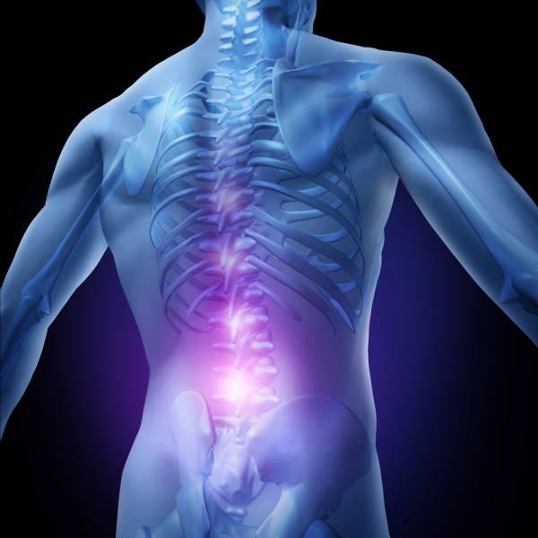 Giới văn phòng hoảng hốt trước những hệ quả của bệnh đau lưng 1