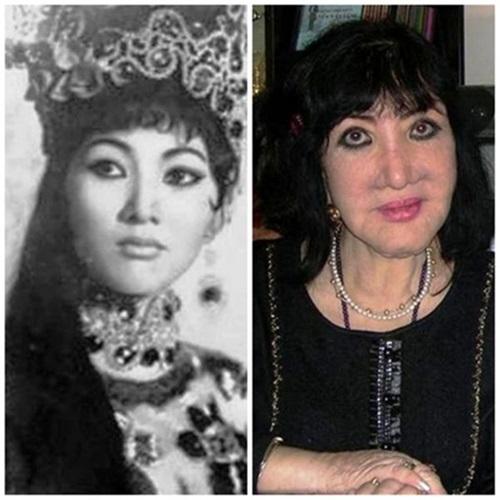 Sao Việt và gương mặt biến dạng do phẫu thuật thẩm mỹ 4