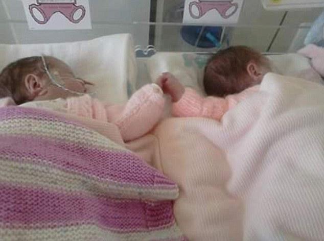 Xúc động cảnh 2 bé song sinh nắm tay nhau trong cuộc chiến dành sự sống 1