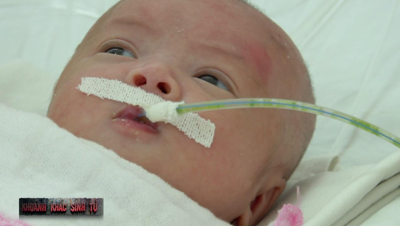 Cứu sống bé gái có ruột non và đại tràng nằm ngoài ổ bụng 1
