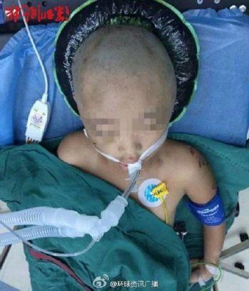Bé gái 7 tuổi bị mẹ đánh chấn thương sọ não vì trộm tiền 2