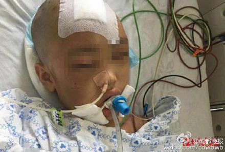 Bé gái 7 tuổi bị mẹ đánh chấn thương sọ não vì trộm tiền 3