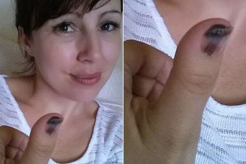 Phát hiện ung thư ác tính nhờ vết bầm trên móng tay 1