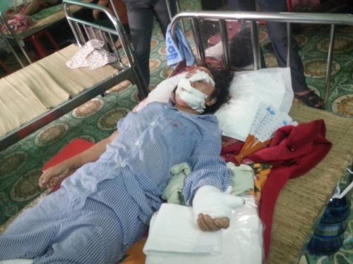 Rúng động Bắc Giang: Tin nhắn hãi hùng của kẻ cắt gân tay vợ 1