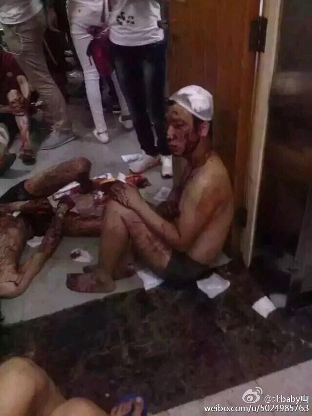 Những hình ảnh gây xúc động mạnh trong vụ nổ kinh hoàng ở TQ 9