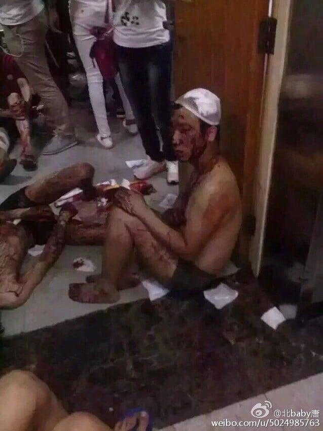 Toàn cảnh vụ nổ Trung Quốc: Thiên Tân tang thương, nguy hiểm còn rình rập 4