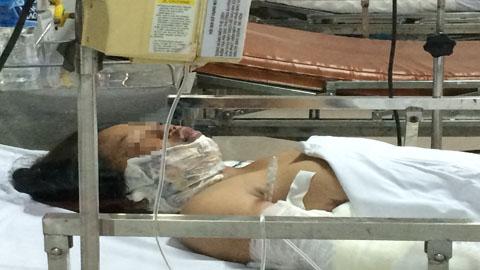 Bé gái bị mẹ tẩm xăng đốt sẽ được ghép da 1