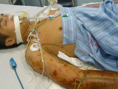 Bệnh lạ ăn mặt người đàn ông Tiền Giang là do vi khuẩn